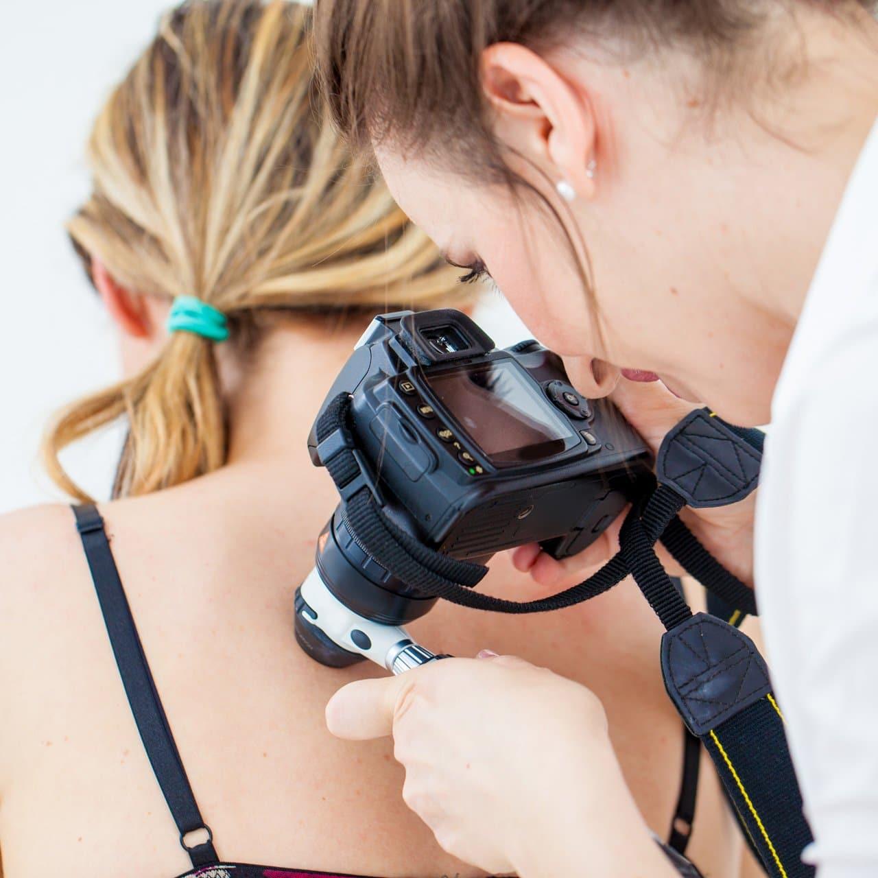 Hautkrebs Früherkennung